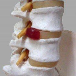 腰椎ヘルニア模型